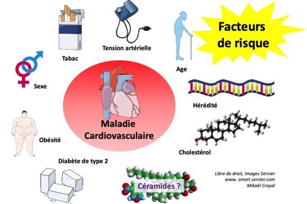 Les Céramides : un nouveau marqueur/facteur de risque cardiovasculaire ? © UMR PHAN