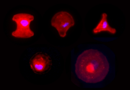 Morphologie de fibroblastes exprimant la tryptophane hydroxylase (rouge) sur puits Cytoo montrant une large gamme de phénotypes. Ces fibroblastes, obtenus de manière non-invasive, montrent la même gamme de phénotypes que le raton ait reçu ou pas un bolus de L-tryptophane durant l'allaitement.. © UMR PHAN, B. Kaeffer